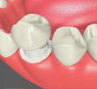 Dental Crowns Chino California