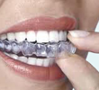 Invisalign Chino California