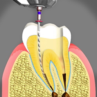 root canal treatment Chino CA