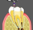 Root Canal Treatments Chino California
